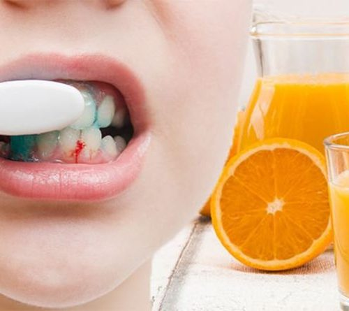 Can Increased Vitamin C Intake Help Bleeding Gums?