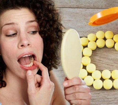 Can Increased Vitamin C Intake Help Bleeding Gums?