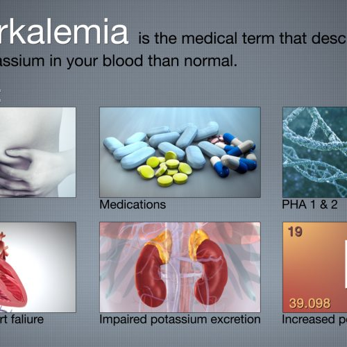 Hyperkalemia Causes and Its Treatment